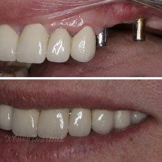 Dental Implants Turkey Before After 11