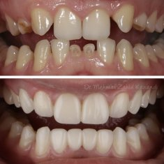 Dental Implants Turkey Before After 9