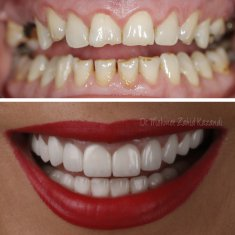 Dental Implants Turkey Before After 8