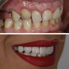 Dental Implants Turkey Before After 7