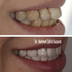 Dental Implants Turkey Before After 6