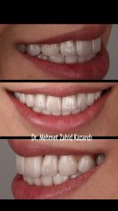 Dental Implants Turkey Before After 4