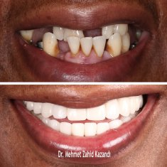 Dental Implants Turkey Before After 3