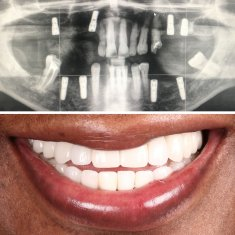 Dental Implants Turkey Before After 2