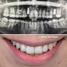 Dental Implants Turkey Before After 1