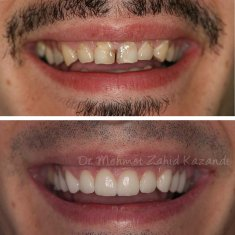 Veneers Turkey Before After 16