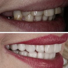 Veneers Turkey Before After 2