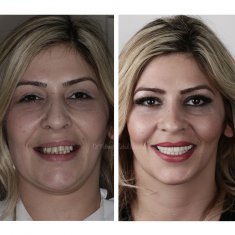 Veneers Turkey Before After 1