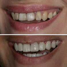 Veneers Turkey Before After 14