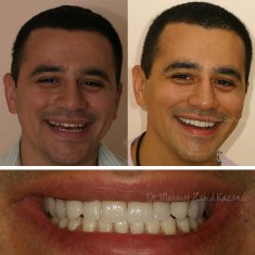 Veneers Turkey Before After 9