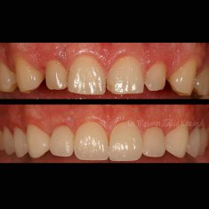 Veneers Turkey Before After 8