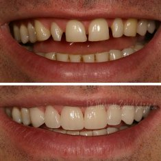 Veneers Turkey Before After 18