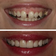 Veneers Turkey Before After 4