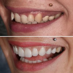 Veneers Turkey Before After 50