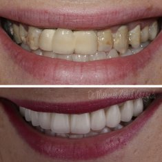 Veneers Turkey Before After 49