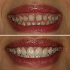 Veneers Turkey Before After 54
