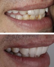 Veneers Turkey Before After 48