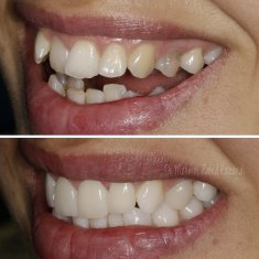 Veneers Turkey Before After 47
