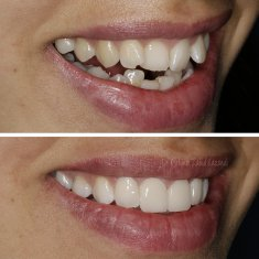 Veneers Turkey Before After 46