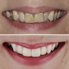 Veneers Turkey Before After 44