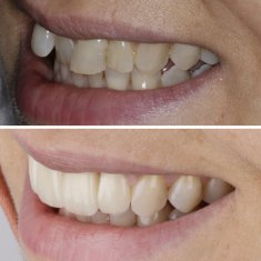 Veneers Turkey Before After 43