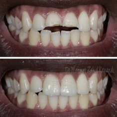 Veneers Turkey Before After 42
