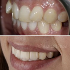Veneers Turkey Before After 41