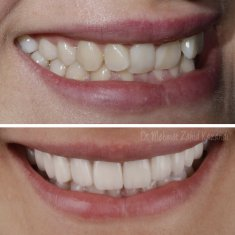 Veneers Turkey Before After 40