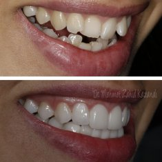 Veneers Turkey Before After 38