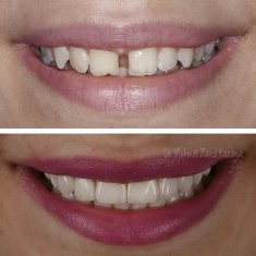 Veneers Turkey Before After 37