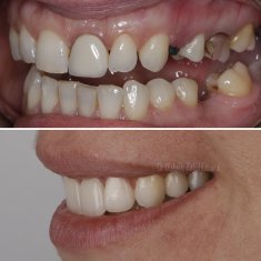 Veneers Turkey Before After 36