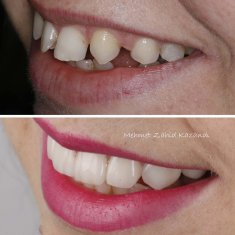 Veneers Turkey Before After 34