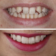 Veneers Turkey Before After 33