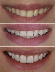 Veneers Turkey Before After 32