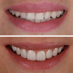 Veneers Turkey Before After 31