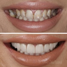 Veneers Turkey Before After 30