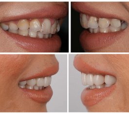Veneers Turkey Before After 29