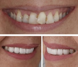 Veneers Turkey Before After 27