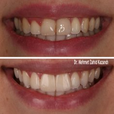Veneers Turkey Before After 24