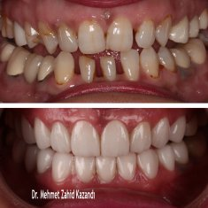 Veneers Turkey Before After 23