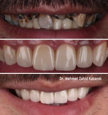 Veneers Turkey Before After 19