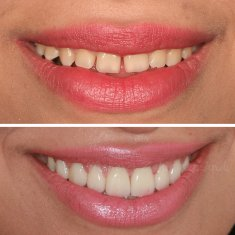 Veneers Turkey Before After 53