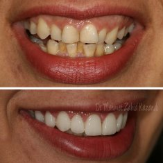 Veneers Turkey Before After 52