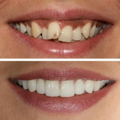 Veneers Turkey Before After 51