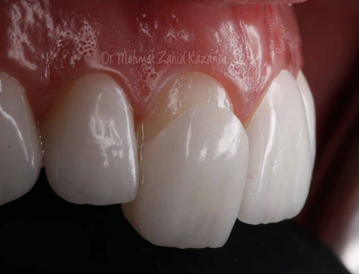 what is porcelain veneer